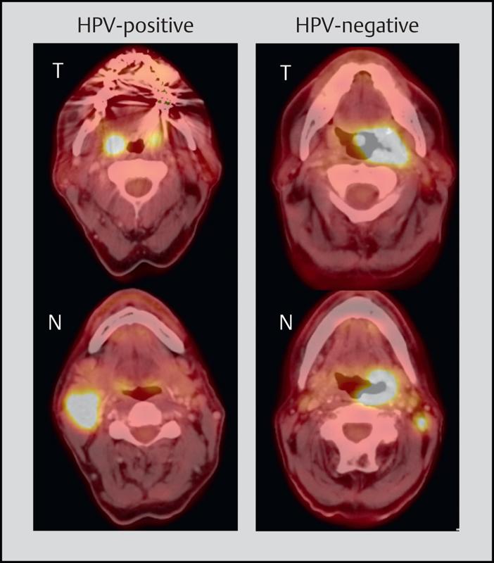 hpv hno tumor