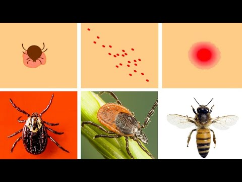 cum se pot infecta cu viermii)