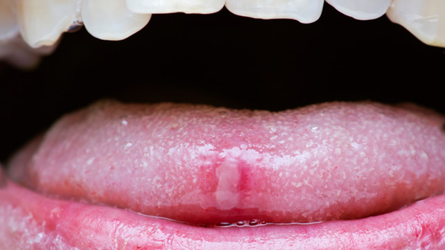 warts on tongue treatment