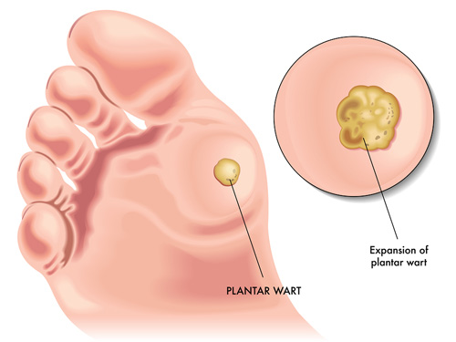 vaccino papilloma virus effetti indesiderati
