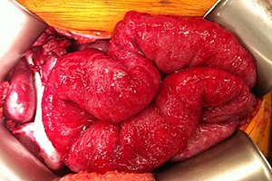 diagnosticul de veruci plate respiratory papillomatosis cases