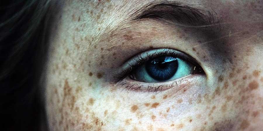 ce e cancerul de piele