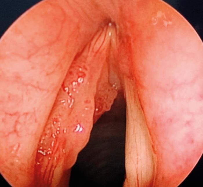 glottic respiratory papillomatosis)
