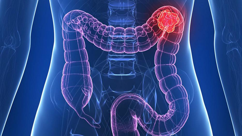 Durerea in cancerul de colon - Cancerul de colon si durerile de spate