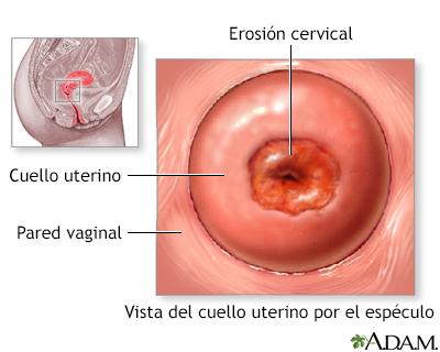 papanicolaou anormal y colposcopia normal
