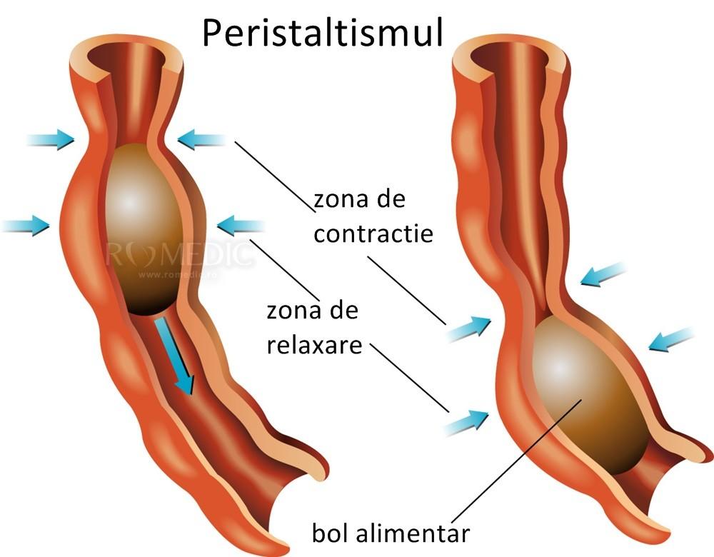 papilom scuamoas al tratamentului esofagului vermox pentru copii