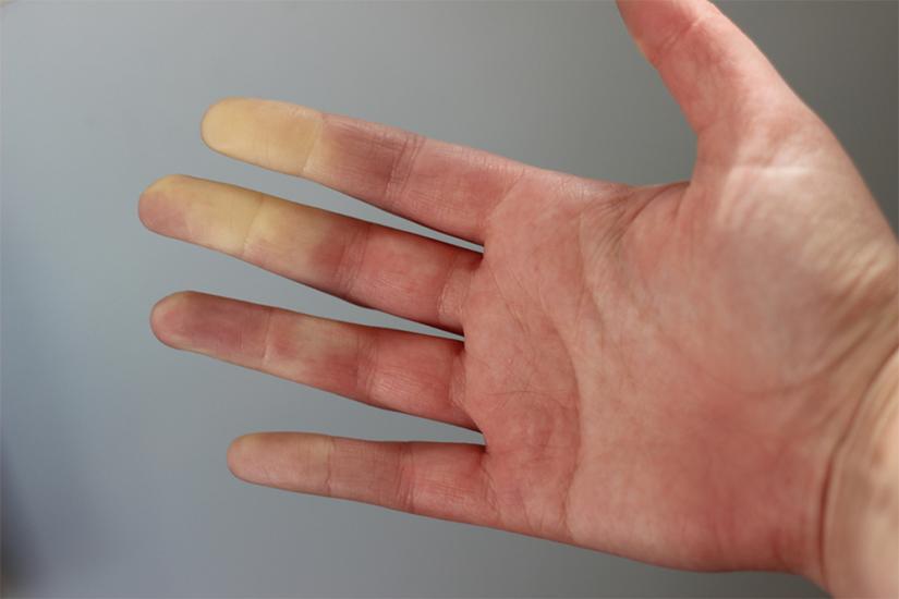 leziuni între degetele de la picioare cum se tratează