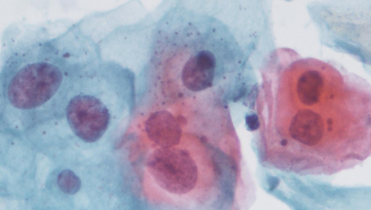 papillomavirus est il transmissible a l homme)