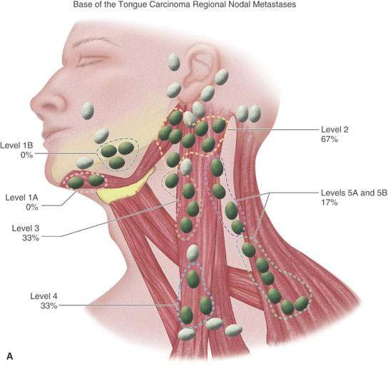 The epidemiology of hypopharynx and cervical esophagus cancer