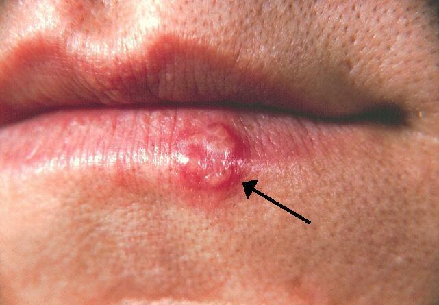 papilloma virus ed herpes)