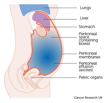 abdominal distension colon cancer