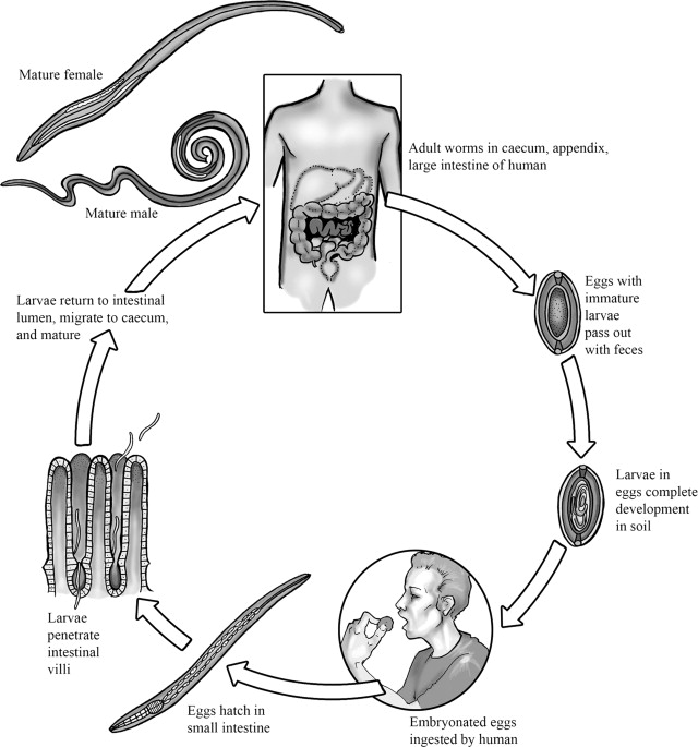 facilitate trichocephalosis
