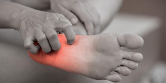 paraziți ai pielii pe mâini
