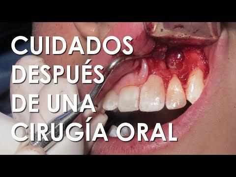 Papiloma gingival, Virusul papiloma uman poate provoca cistită Papiloma gingival