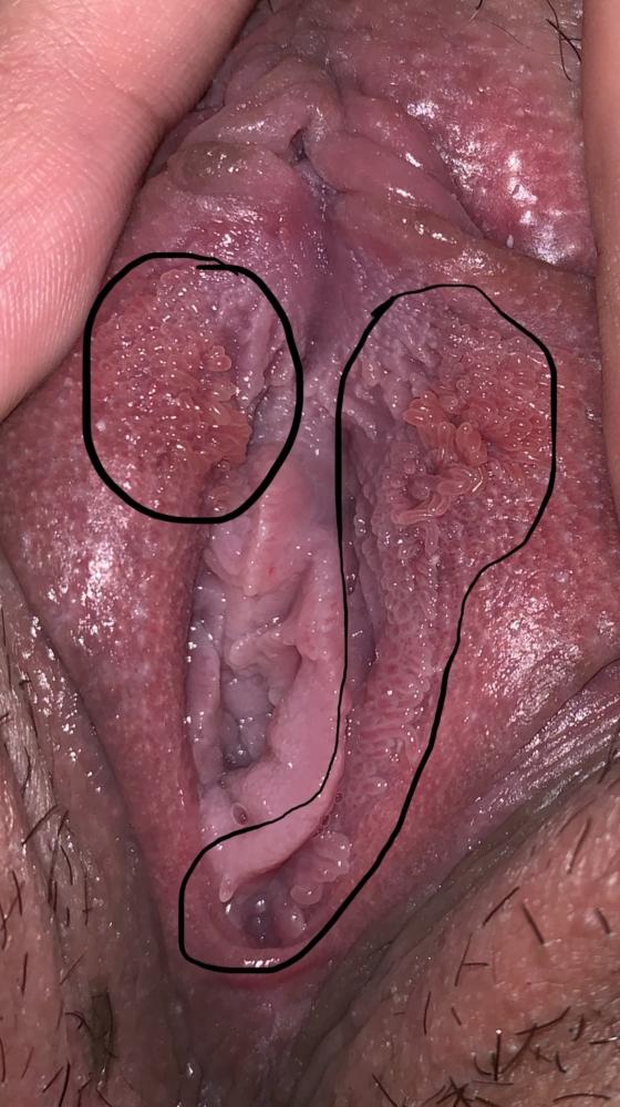 Vestibular papillae symptoms - info-tecuci.ro