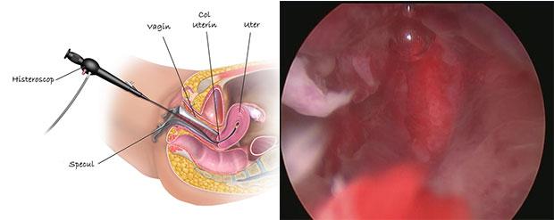inlaturarea uterului)