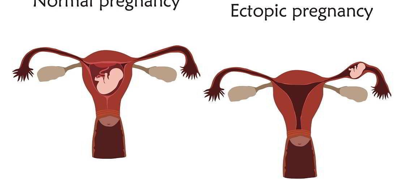 papillomavirus operation enceinte)