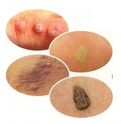 Wart treatment pregnancy, Hpv wart treatment pregnancy