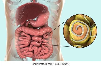 6 remedii naturale împotriva paraziților intestinali