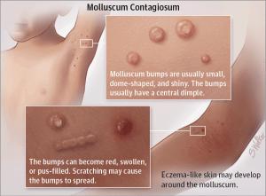 Wart like virus on body. Tratamentul cu nematode umane