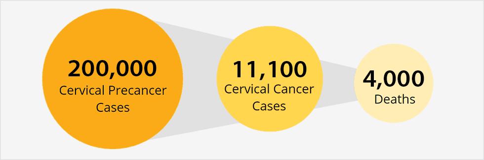Papilloma 53 Virusul HPV - Definitii, Preventie, Diagnostic si Tratament