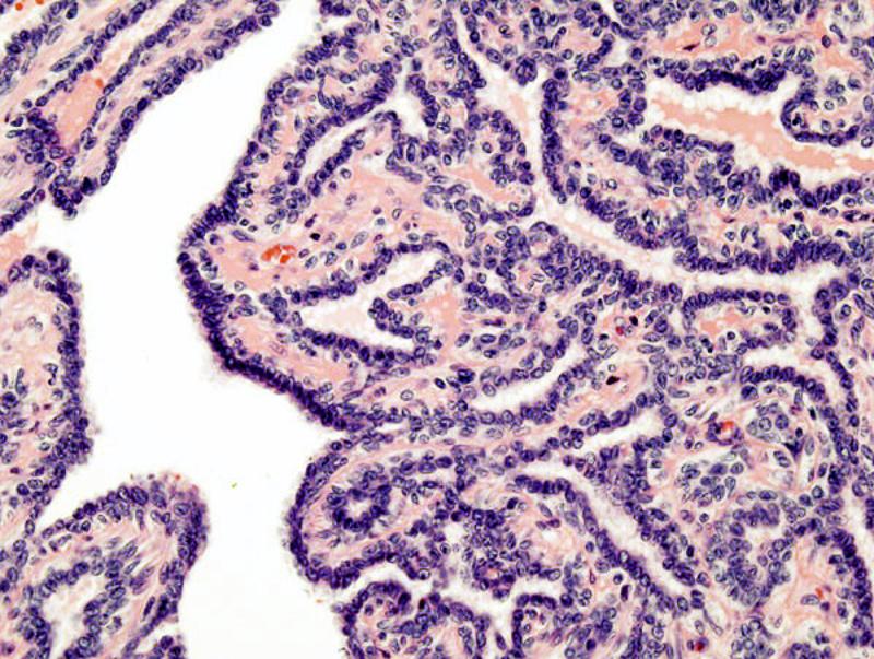 Papiloma intraductal de mama - Papiloma intraductal histologia