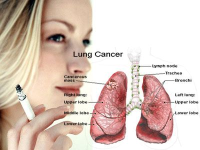 sarcoma cancer lungs