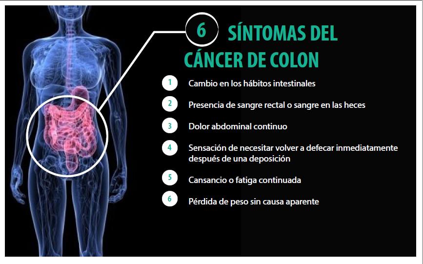 Cancer de colon que produce
