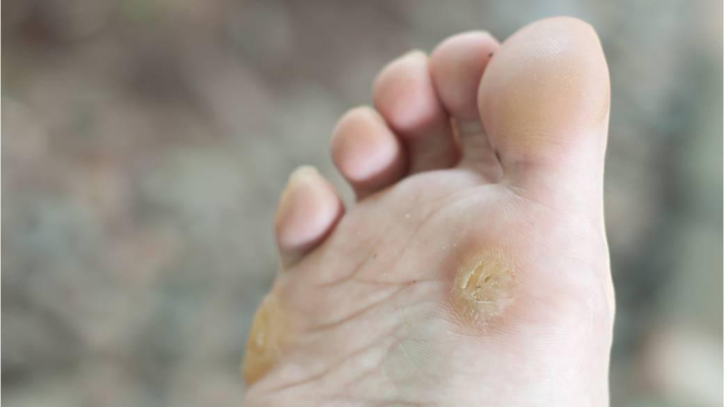 wart virus foot)