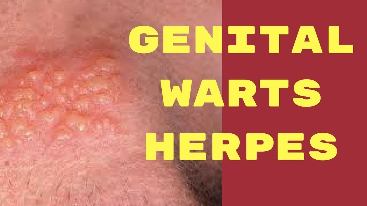 hpv genital warts vs herpes)
