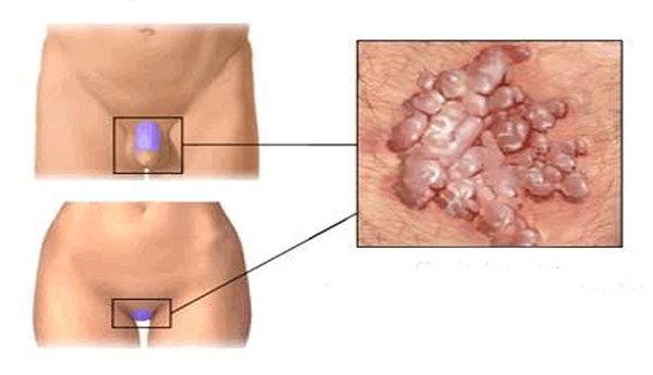 Human papillomavirus tunetei, Viermi simptome medicamente