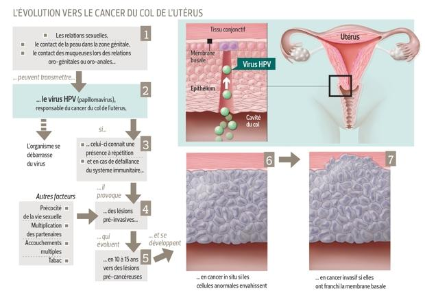 Ovarian cancer vaccines Ovarian cancer vaccines
