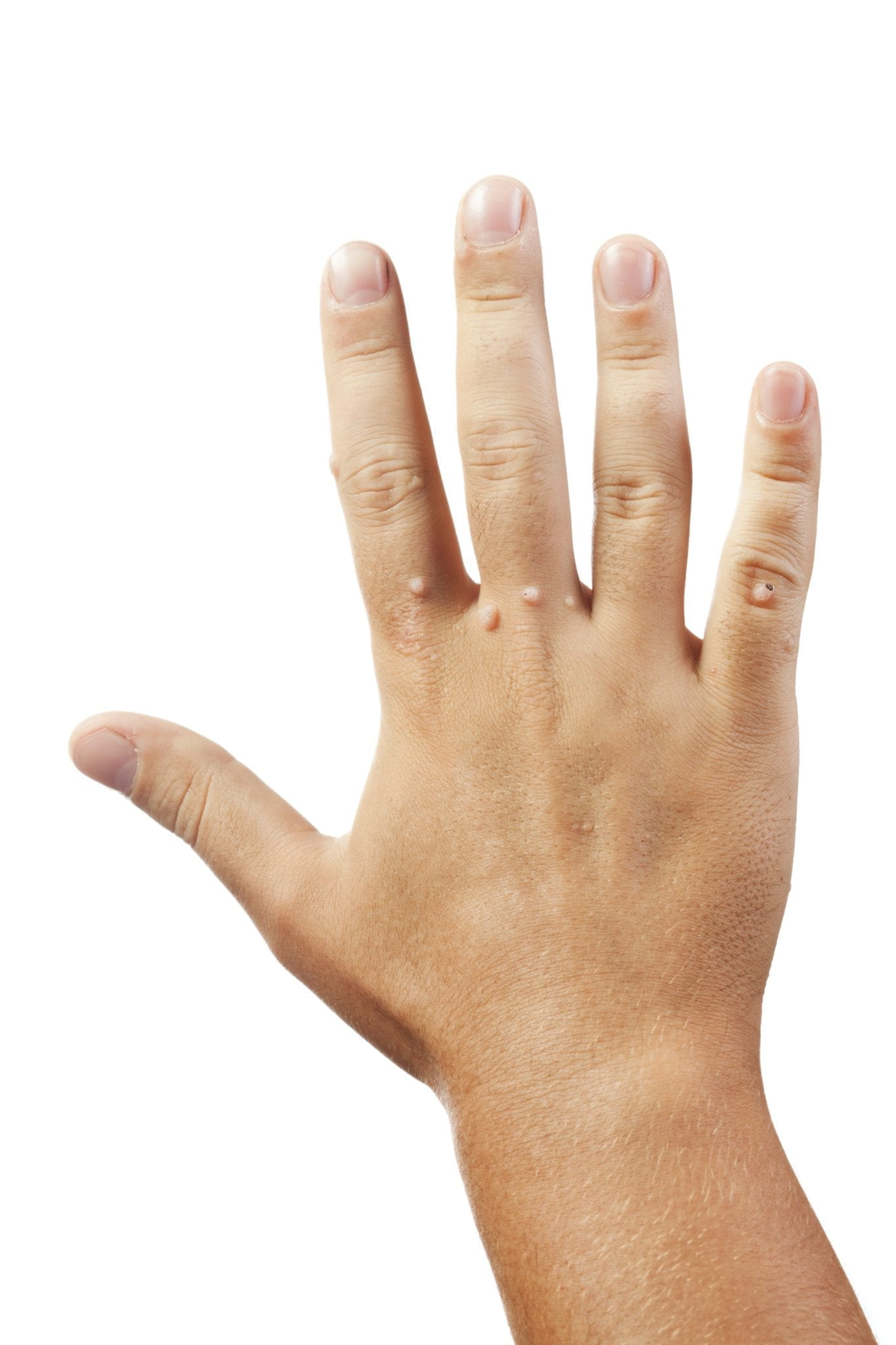Warts on hands and feet during pregnancy. Warts on hands in pregnancy