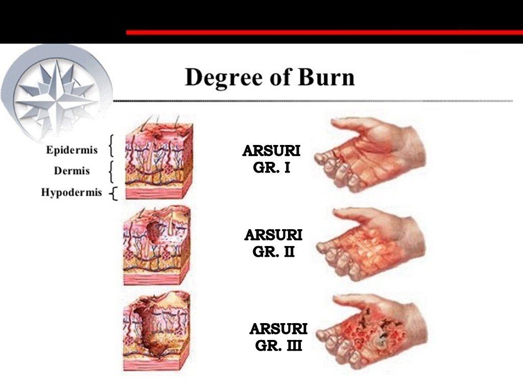 Cum tratăm ACASĂ arsurile pielii? Recomandările specialiștilor