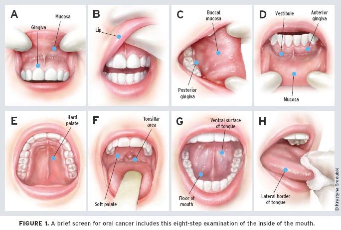 Hpv mouth treatment Tratamentul carcinoamelor de planşeu oral anterior - Hpv on mouth treatment