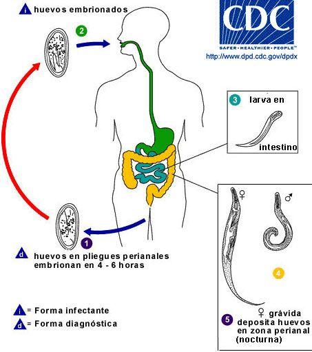 Paraziți ai pielii la mâncărime, Calculi renali | Pietre la rinichi | Simptome, tratament, cauze