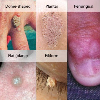 papilloma meaning wart