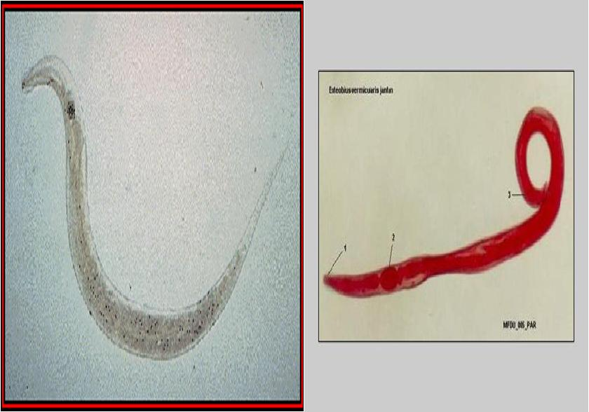 enterobius vermicularis cacing kremi)