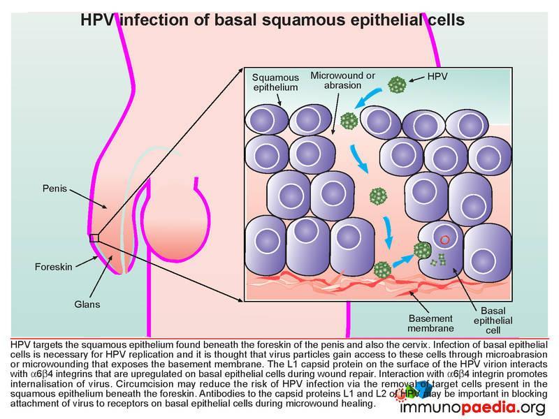human papillomavirus infection etiology and pathogenesis
