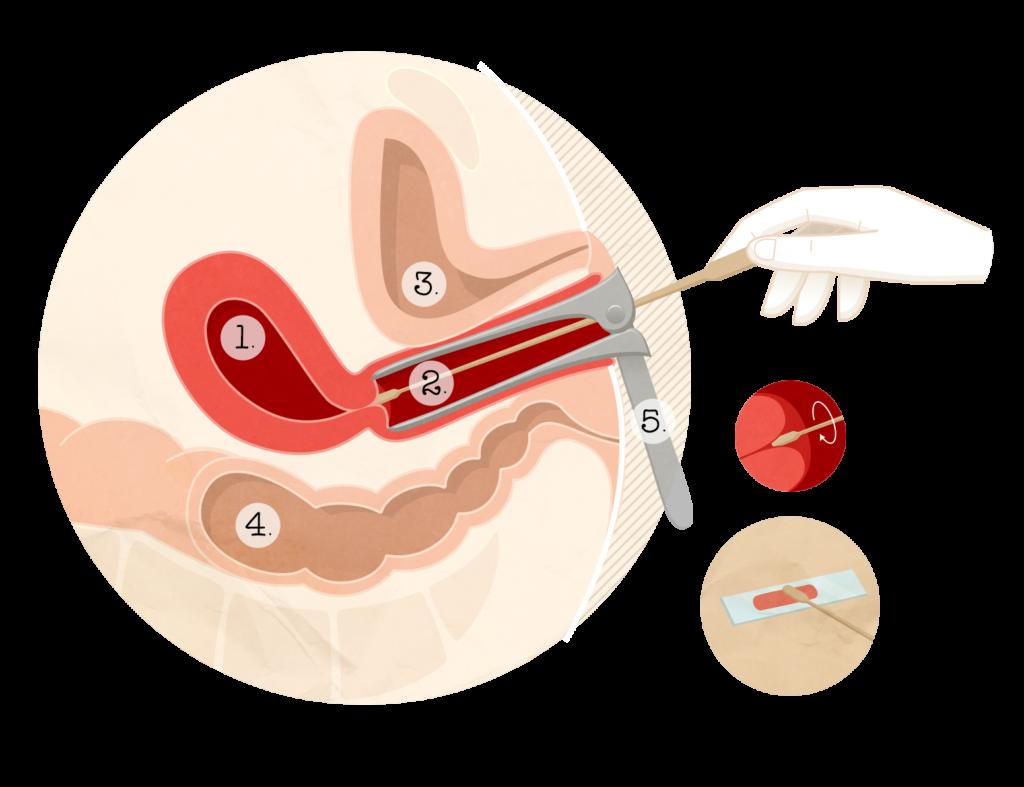traitement lesion papillomavirus)