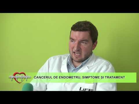 Cancerului de endometru. 5 simptome adeseori ignorate - Donna Medical Center