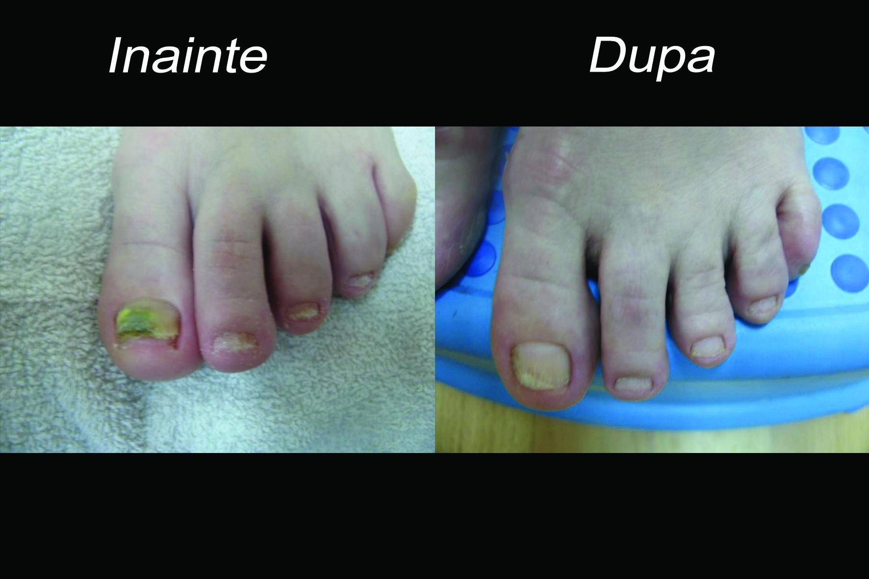 cum se tratează micoza între degete)