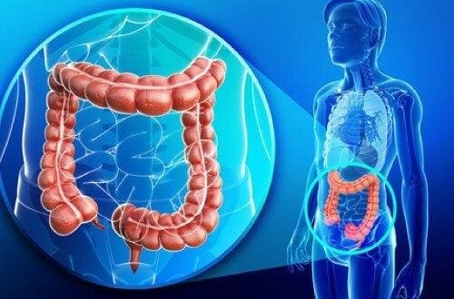 clisme pentru curățarea intestinelor de paraziți
