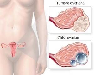 simptome la cancerul ovarian)