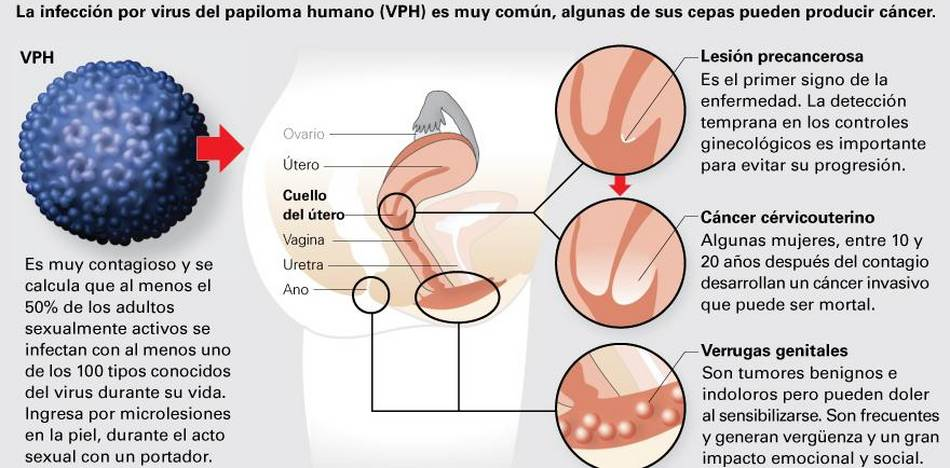 Papilloma duttale. Hpv virus cure mexican scientist