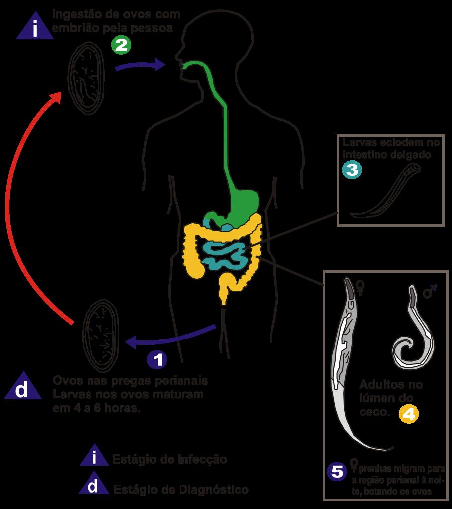 Reguli pentru transmiterea enterobiozei, Regim alimentar oxiuri, Oxiuroza (Enterobioza)