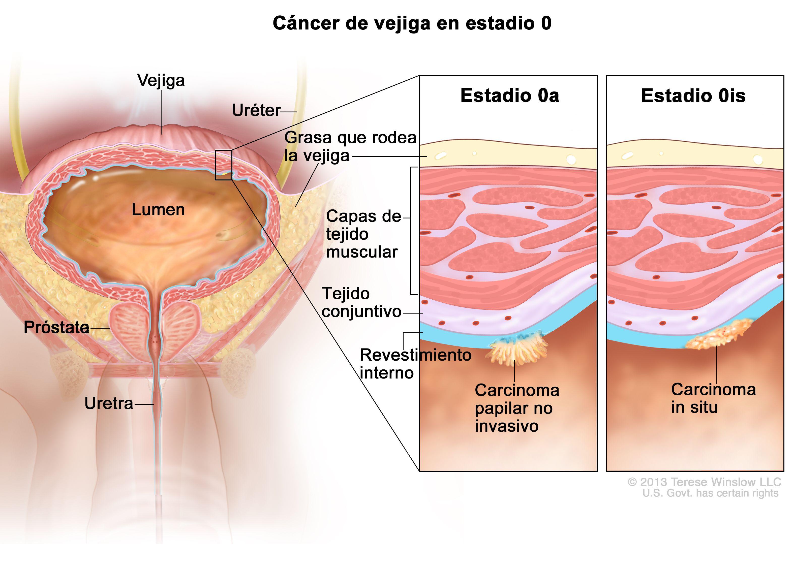 cancer de uretra supervivencia)