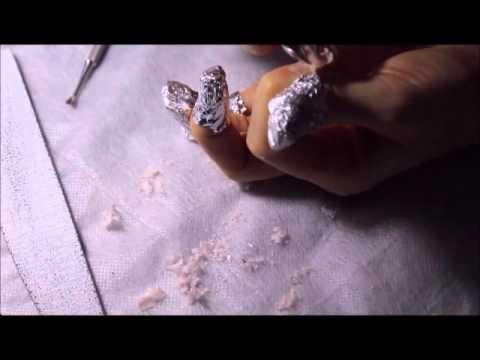 papilomele cum să le îndepărtezi papilloma del pilastro palatino