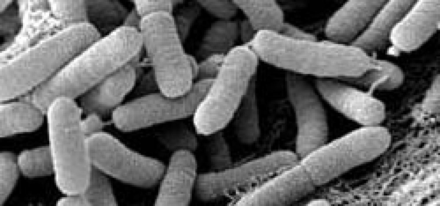 Măslinii din Europa, amenințați de o bacterie ucigașă