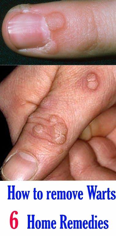 How to remove papilloma warts. Medicamente antiparazitare de ultimă generație